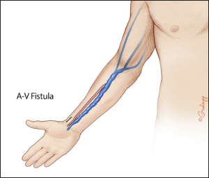 Figure of Arteriovenous Fistula